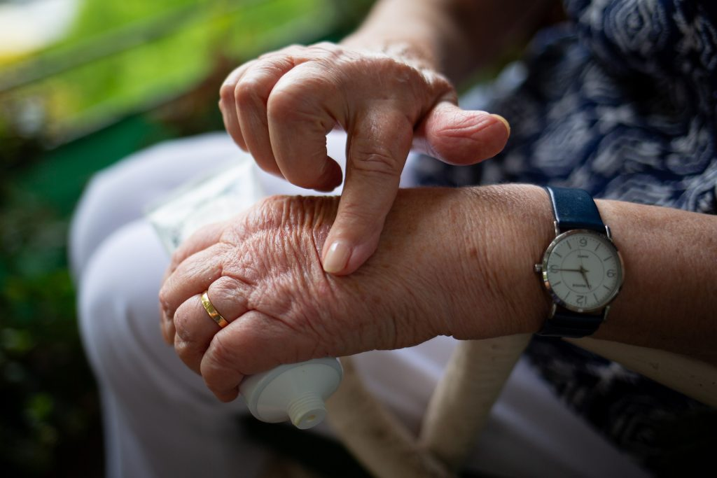 old lady with arthritis in hands